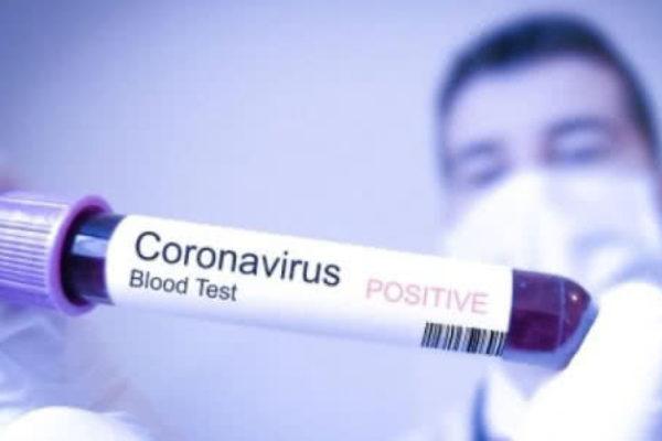 В Украине зарегистрирован первый больной коронавирусной инфекцией