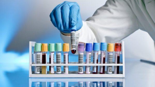 За прошедшие сутки коронавирус выявили у 18 александрийцев