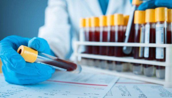 Оперативная информация о распространении COVID-19 и пневмонии в Александрии